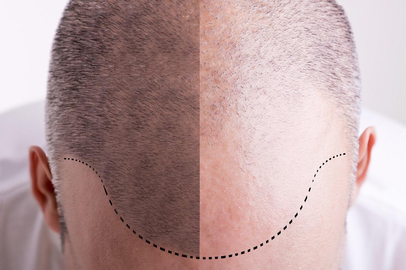 Kostet haartransplantation in männern was eine deutschland bei Haartransplantation ▷